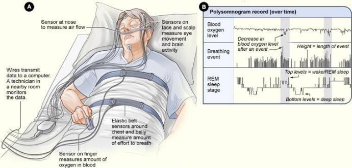 Анализ сна специальными приборами
