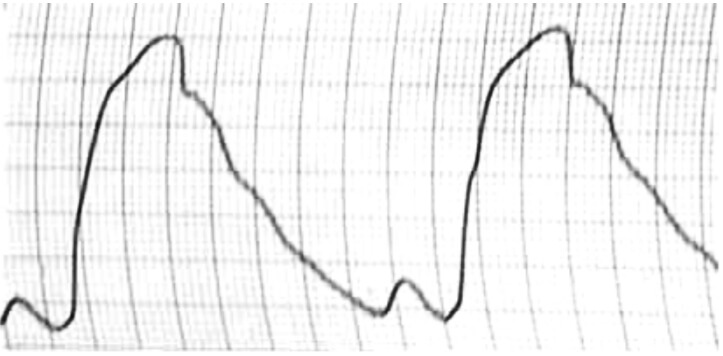 Изменение формы пульсовой волны при атеросклерозе