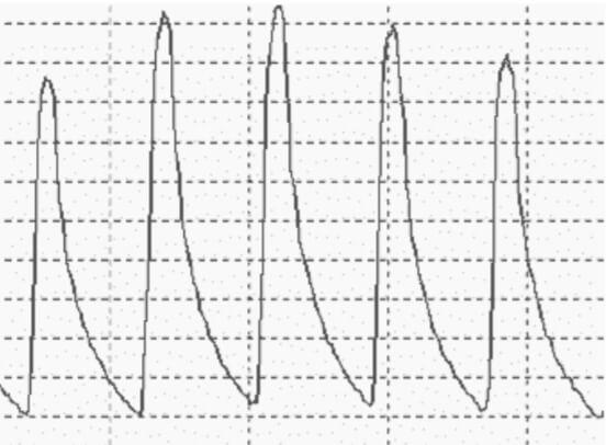 Изменение формы пульсовой волны при сахарном диабете