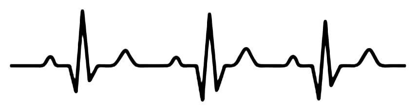 график сердцебиения