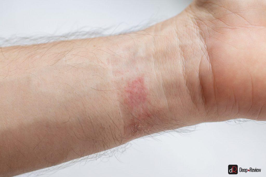раздражение кожи от amazfit bip s