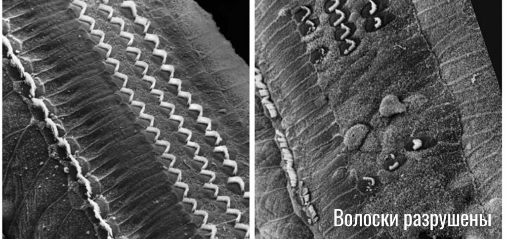 волосковые клетки в нормальном и разрушенном состояниях