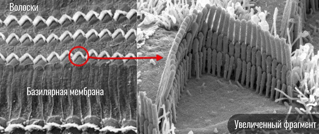 волосковые клетки фото под микроскопом