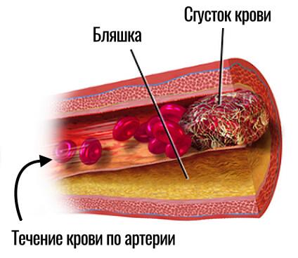 сгусток крови внутри артерии