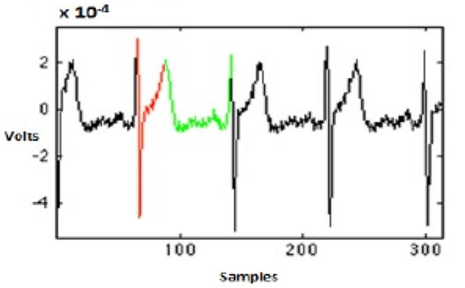 определение артериального давления по ЭКГ