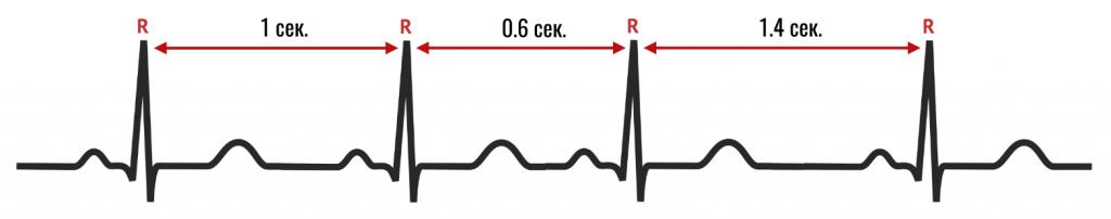 вариабельность сердечного ритма на ЭКГ