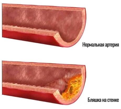нормальная артерия и артерия с бляшкой