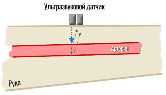 ультразвуковой датчик артериального давления