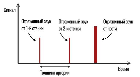 график отраженного ультразвука