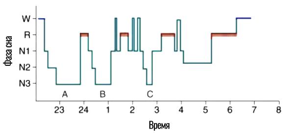 пример гипнограммы
