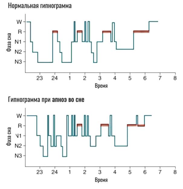 сравнение нормальной гипнограммы и апноэ во сне
