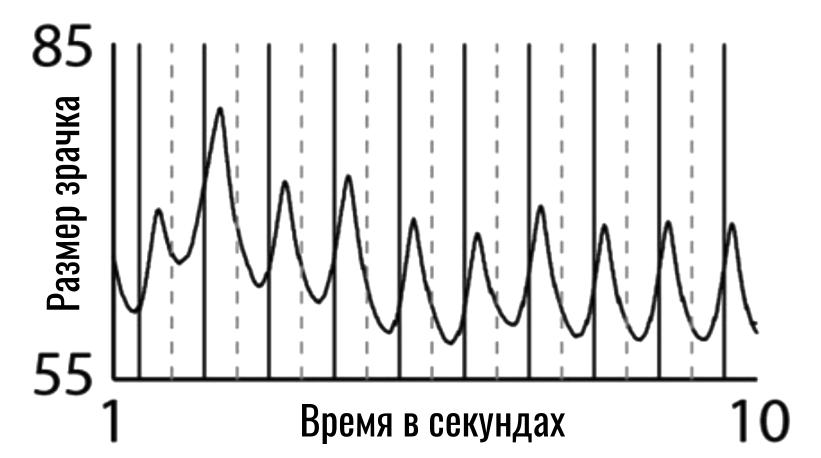 реакция зрачка на мерцание с частотой 1 Гц