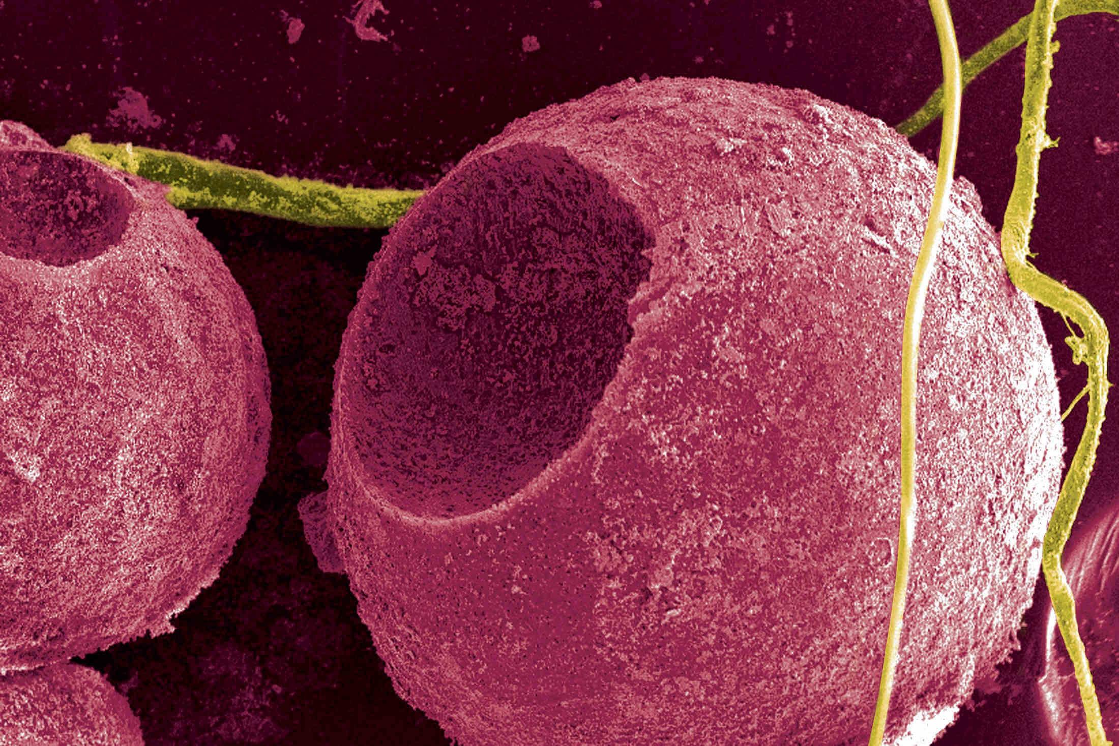 квантовая точка под микроскопом